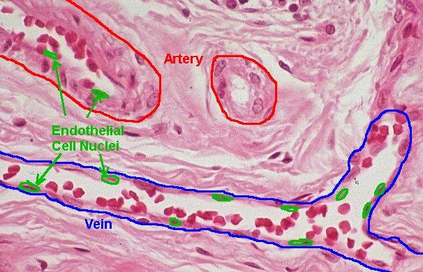 Basic Histology -- Arteries and Veins