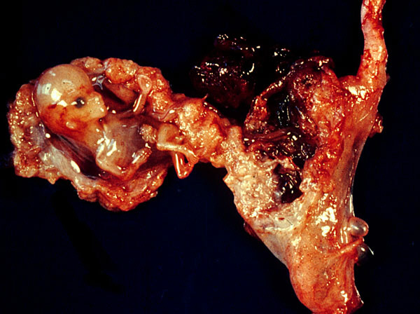 الحمل خارج الرحم ectopic.jpg