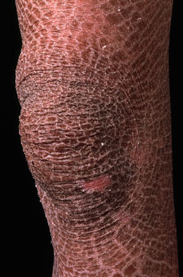 ichthyosis2 How Psoriasis Affect People Psychologically