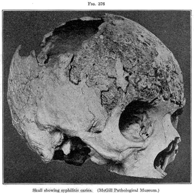 Skull showing syphilis