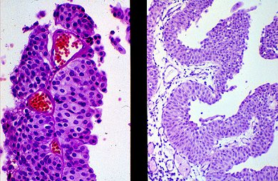 pathology cases urothelial carcinoma pittsburgh pathology cases