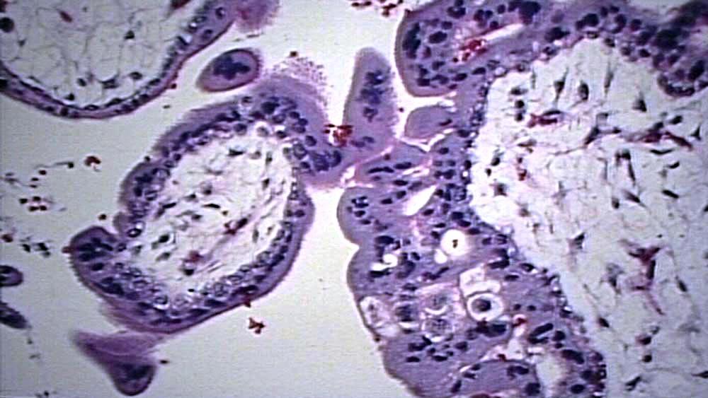 Placental Abruption Gross