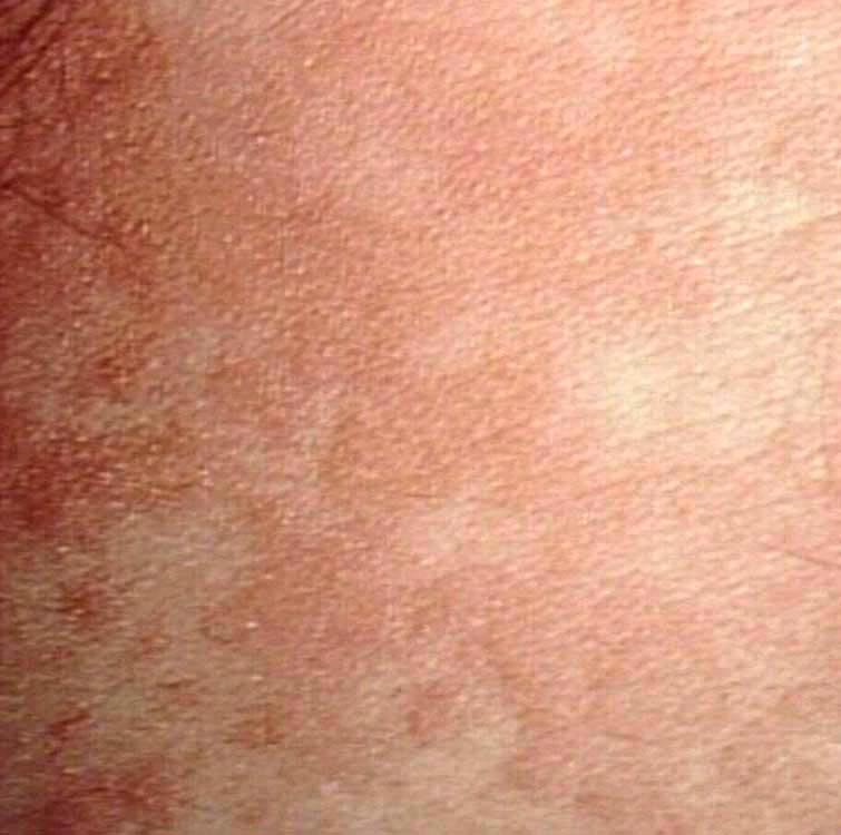 09719  urticaria  H1n1 Rash