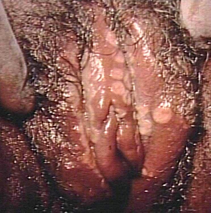 herpes genital photo. herpes genital women.