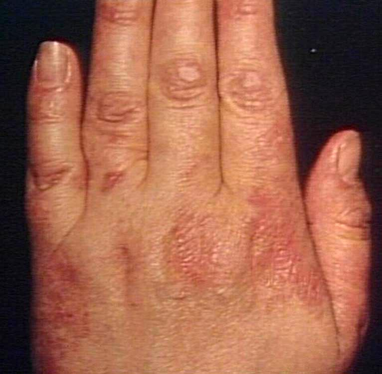 rash on hands from syphilis dog breeds picture