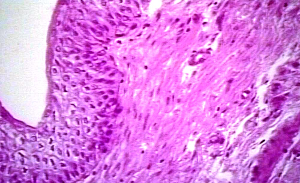 Urinary Bladder Urinary Bladder Urinary Bladder Histology Cross Section