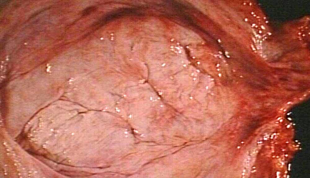 Ureter Urinary Bladder Urethra