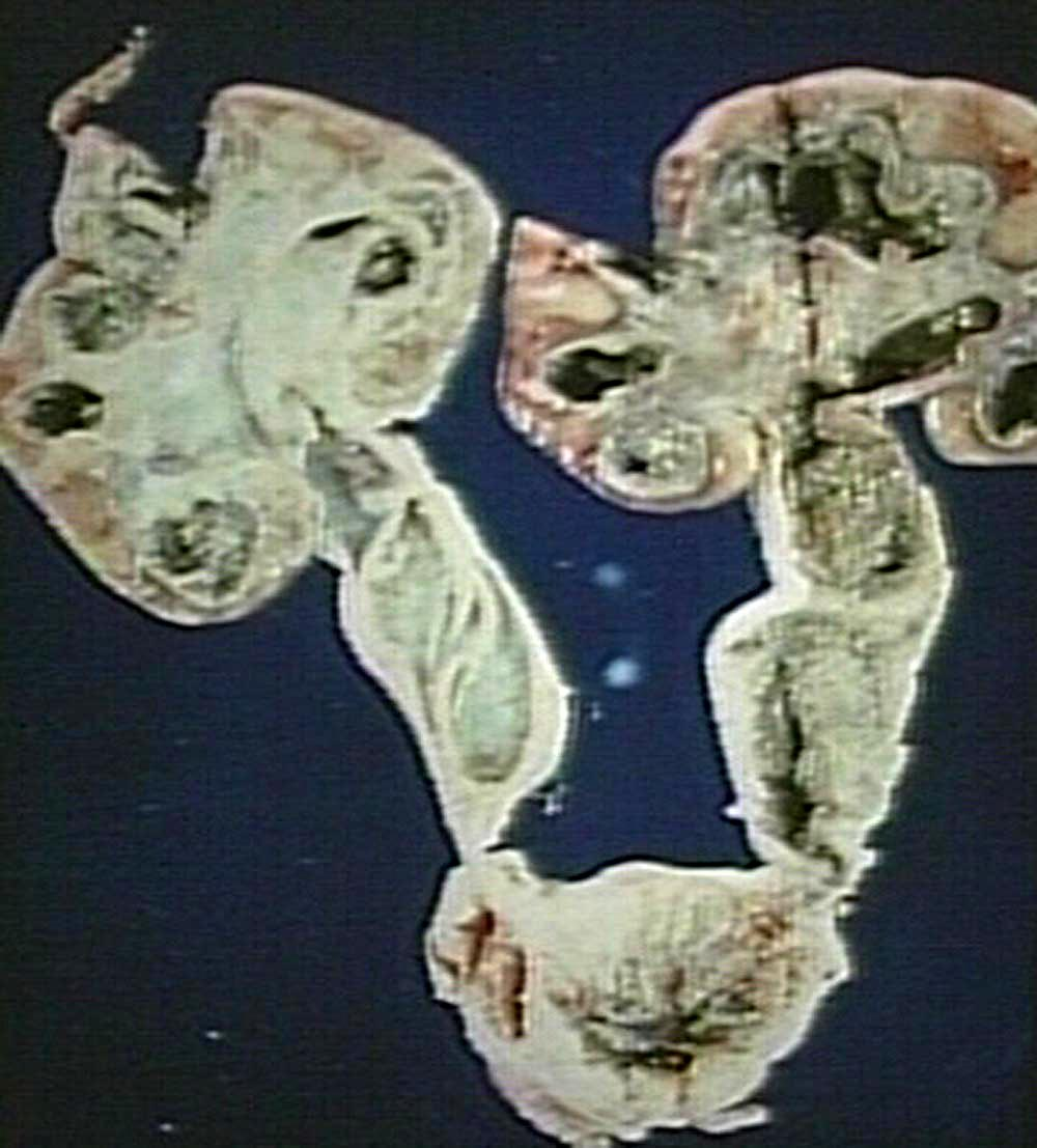 Endocervicosis of the cervix