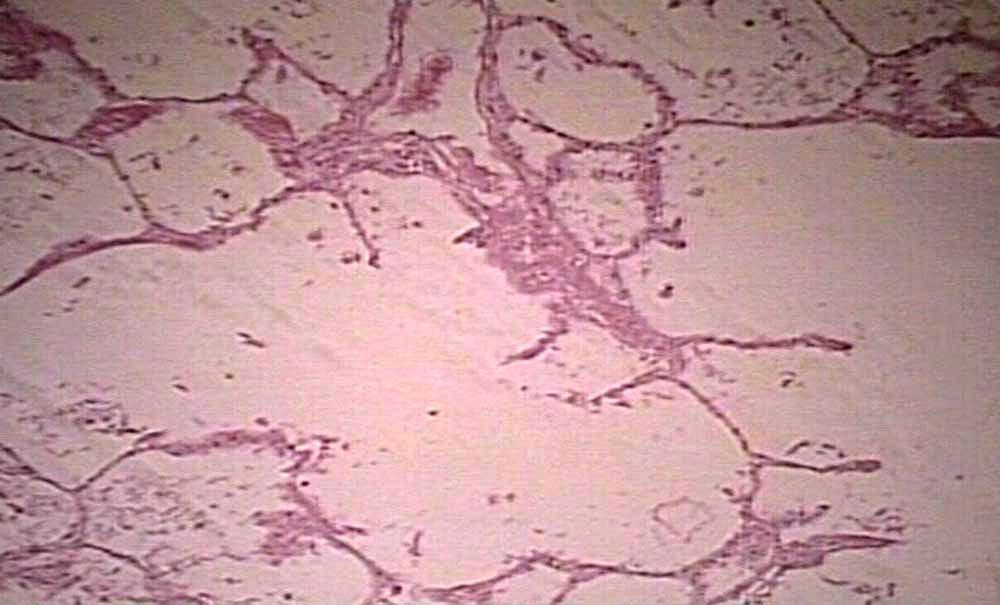 Emphysema histology vs normal