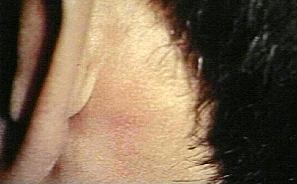 swollen lymph nodes behind ear Car Tuning