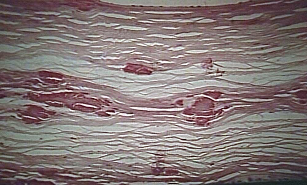 Granular Corneal Dystrophy Histology