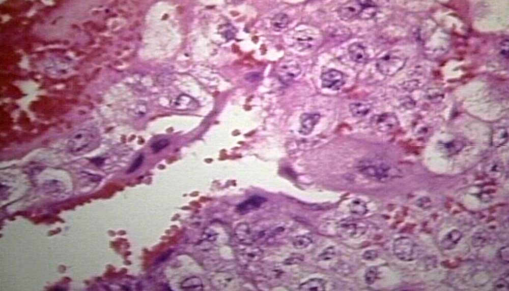 Choriocarcinoma Uterus choriocarcinoma  uterus